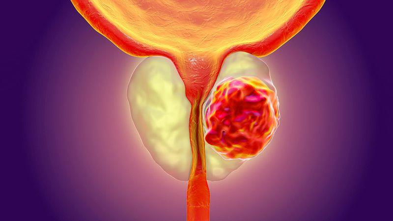 تقليل خطر الإصابة بسرطان البروستاتا