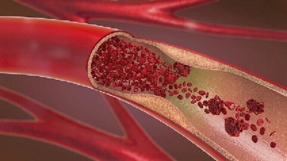 السيطرة على مستويات الكولسترول