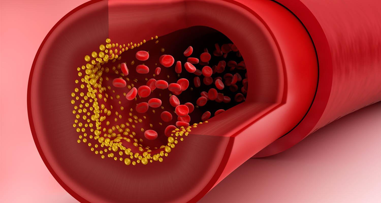 تعزيز صحة القلب وخفض مستويات الكولسترول