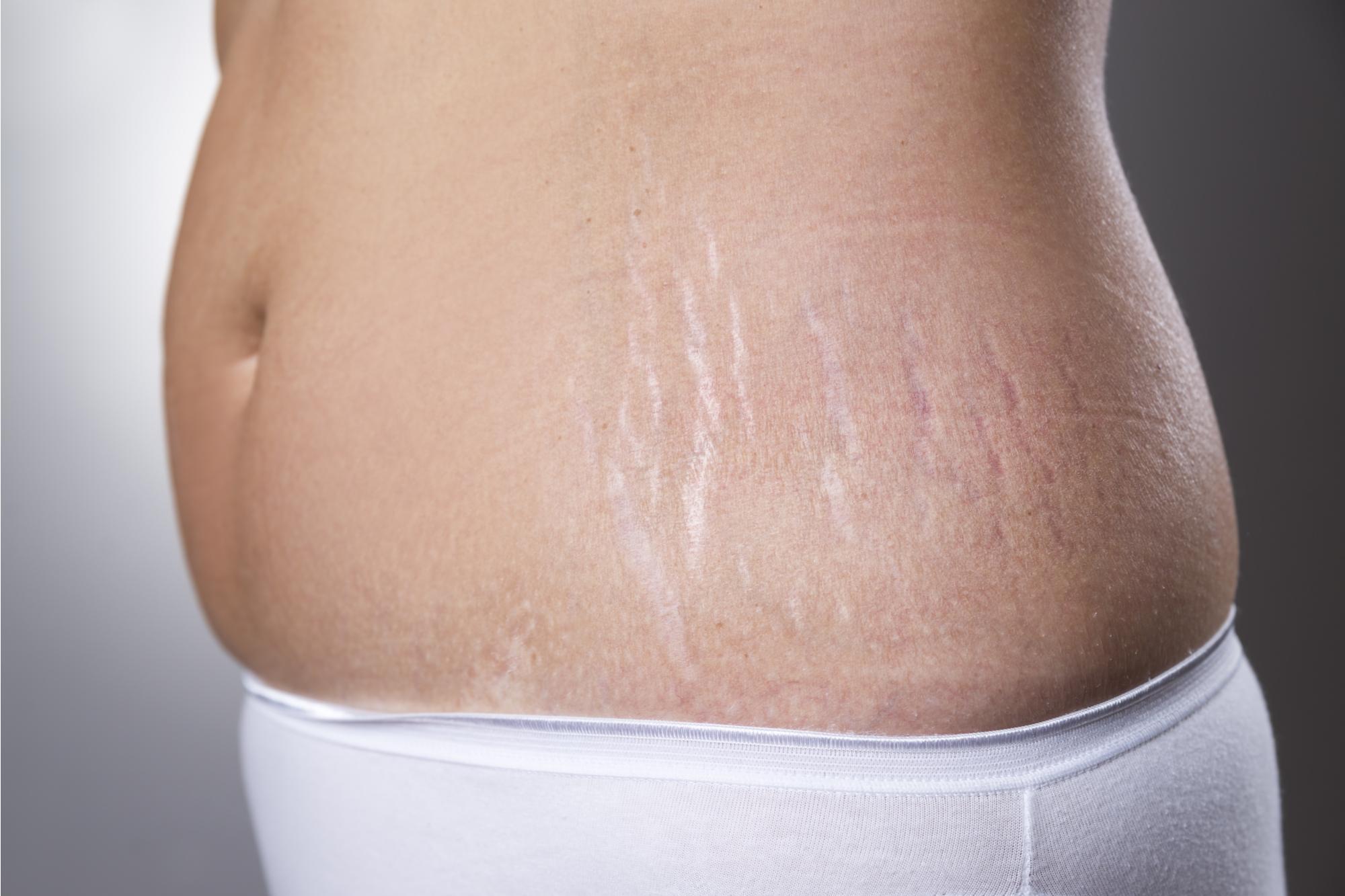 للتخلص من الدهون و علامات التمدد
