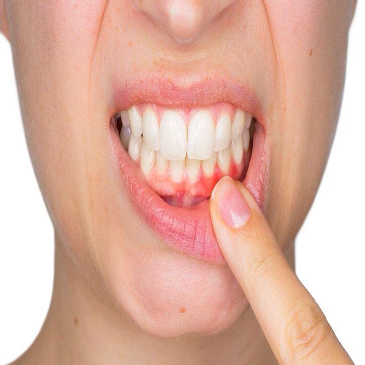 علاج مشاكل اللثة و حساسية الاسنان