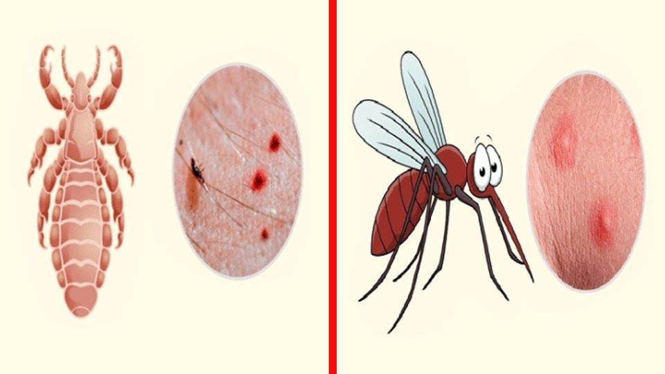 تخفيف لدغات الحشرات والحروق