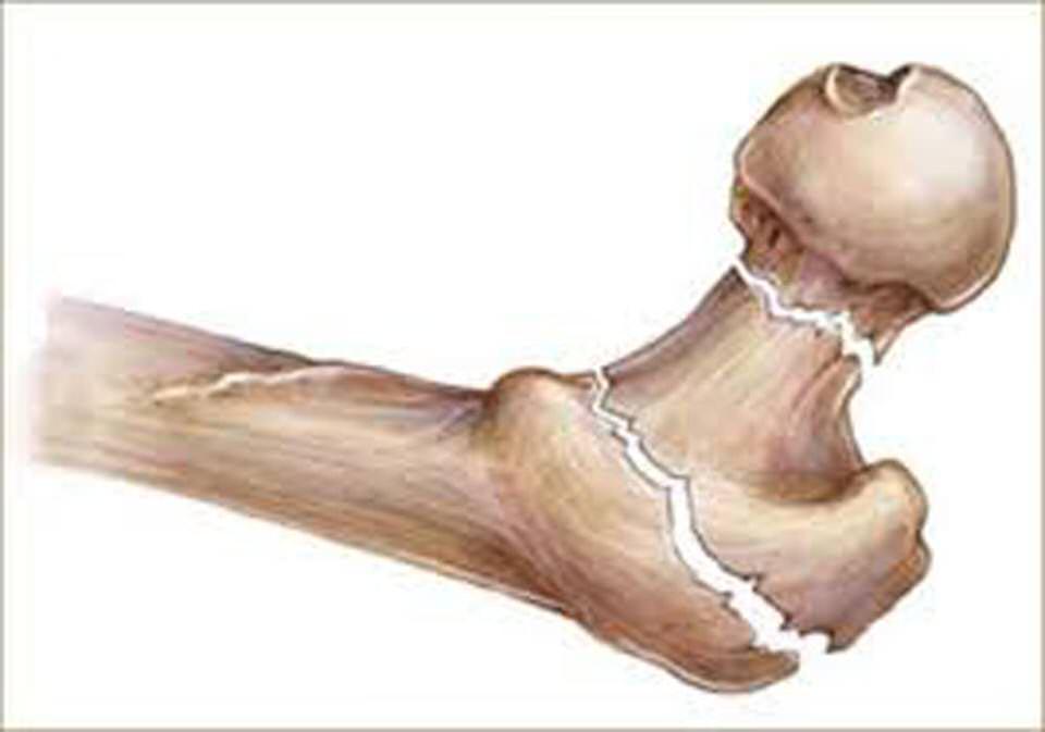 الموز و تدعيم العظام