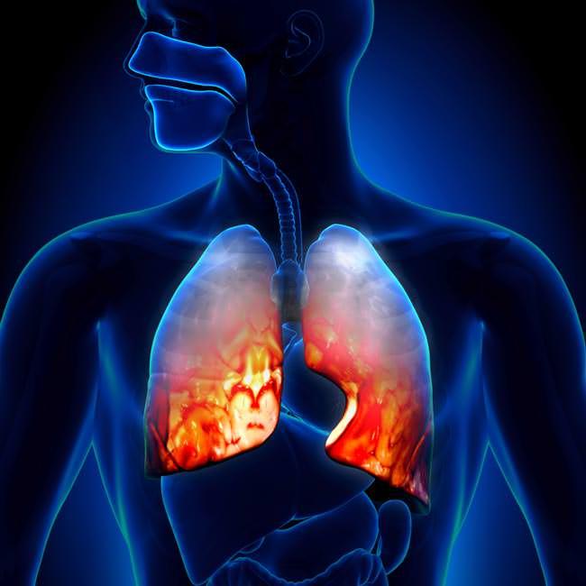 السواك يقلل من أمراض الجهاز التنفسي