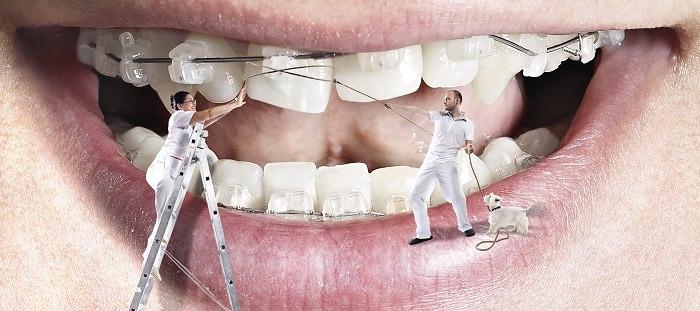 أخصائيو تقويم الأسنان - بمتوسط دخل 12،442 دولار شهريا