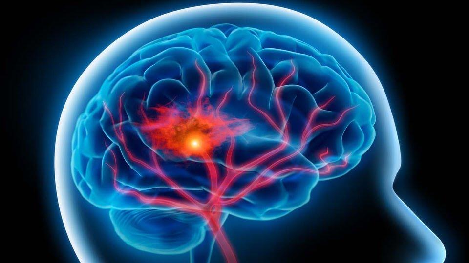 السمنة تؤدي إلى السكتة الدماغية