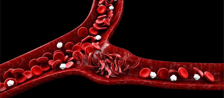 العلاج الجيني لاعتلال الهيموجلوبين