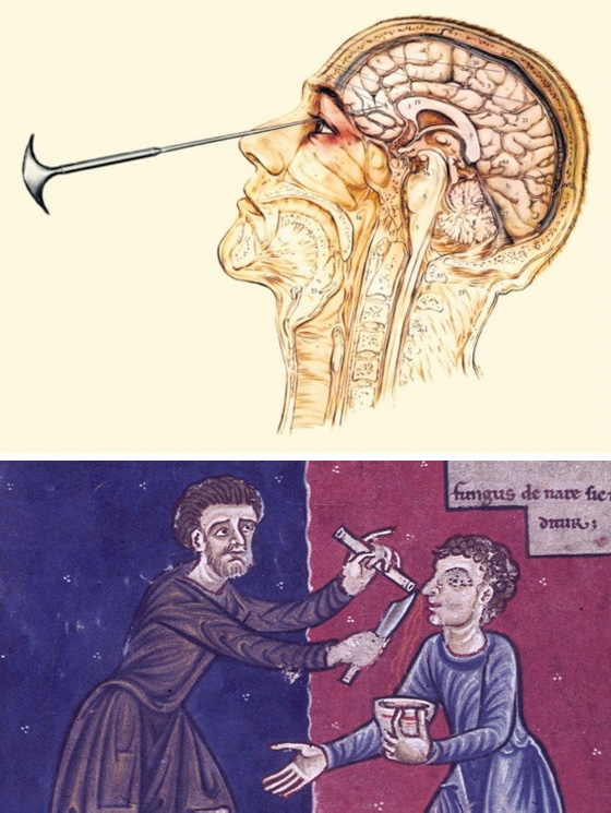 جراحة في فصوص المخ