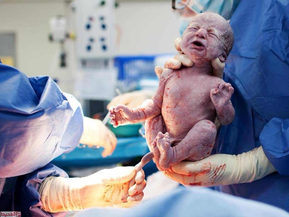 المساعدة على تحفيز عملية الولادة