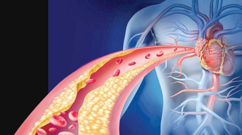 خفض مستوى الكولسترول في الدم