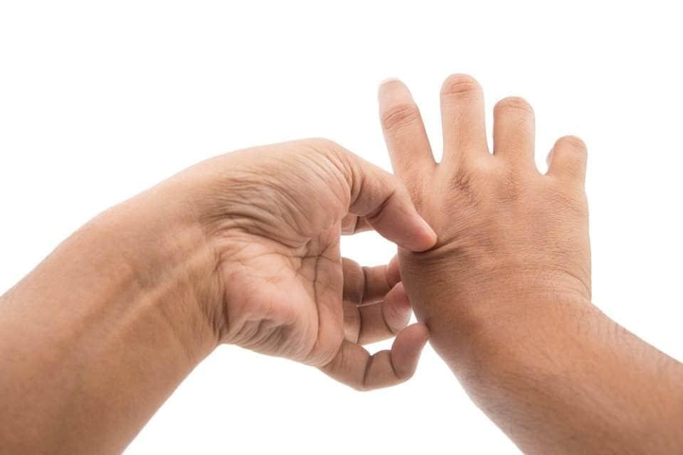 مرض مورغيلونس