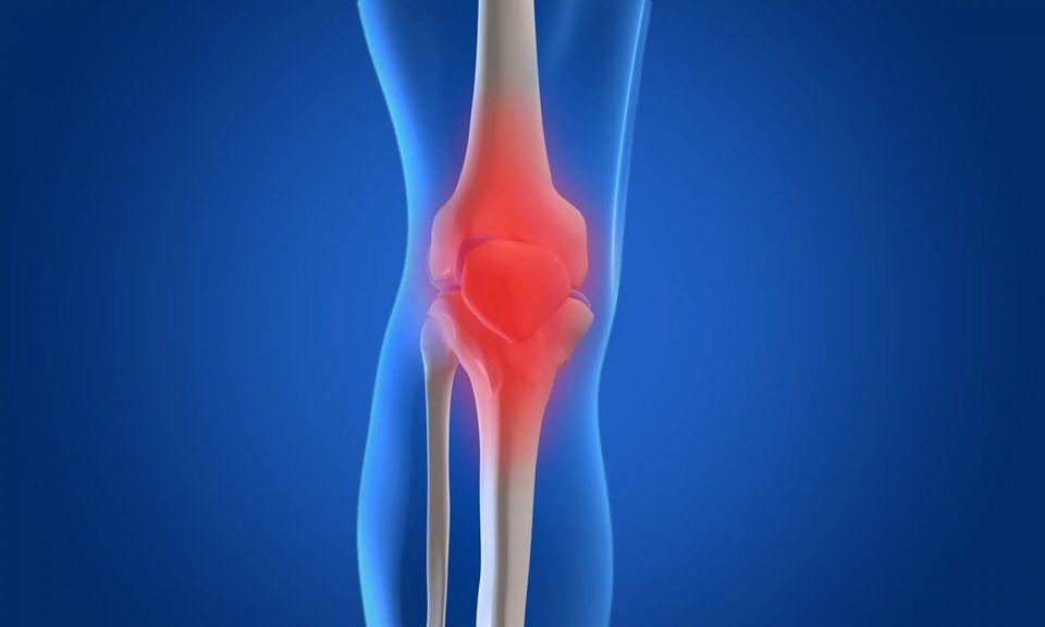 مرض تحول المفاصل إلى عظام