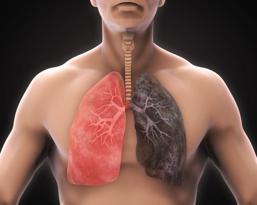 الجهاز التنفسي يفضل الفجل