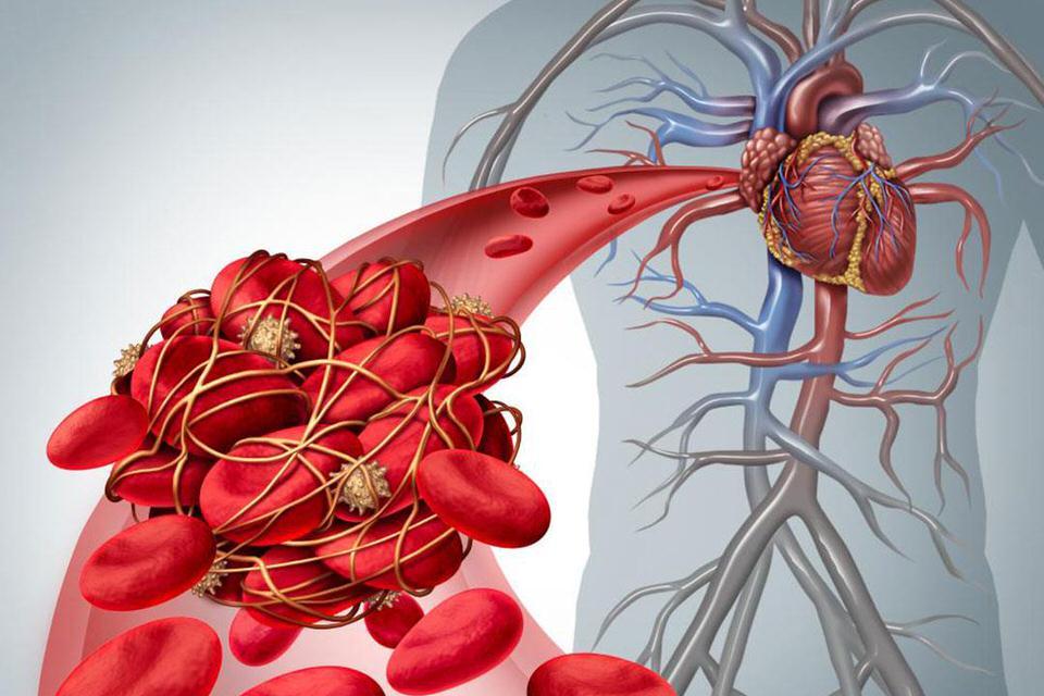 الافوكادو يتفاعل مع مضادات تخثر الدم