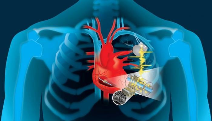 غلاف من الصادات الحيوية لمنع الالتهاب في الأجهزة المزروعة في القلب