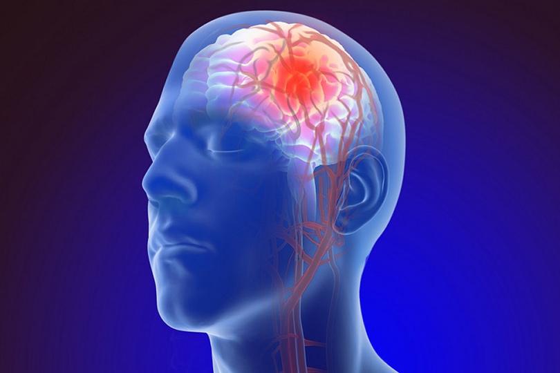 الوقاية من السكتة الدماغية