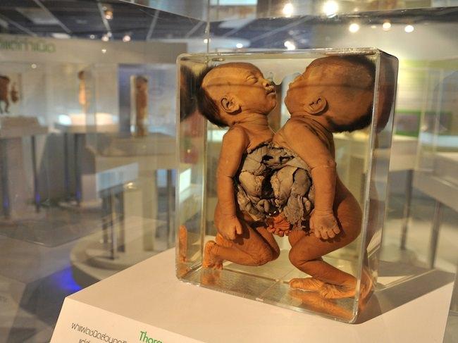 متحف سيريراج الطبي - تايلاند
