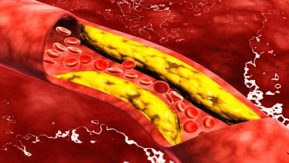 تقليل مستويات الكوليسترول في الدم