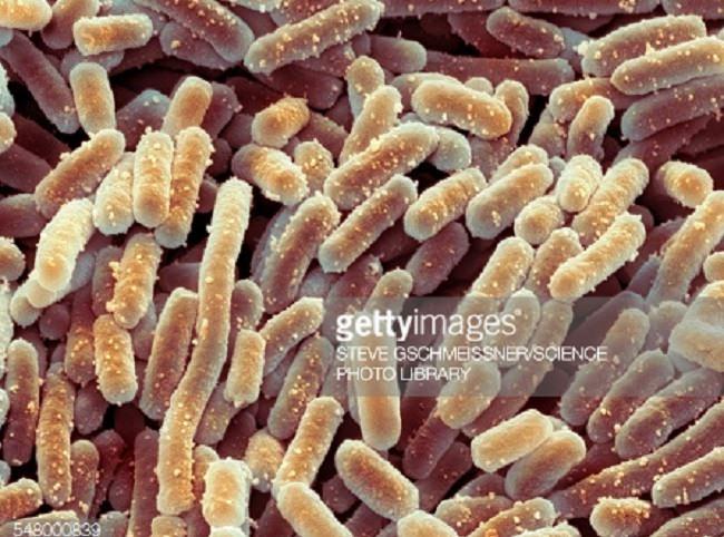 بكتيريا الملبنة البلغارية - Lactobacillus Bulgaricus