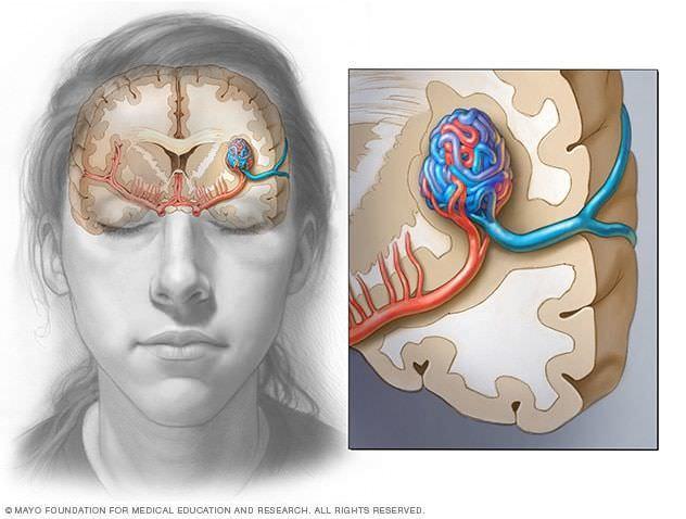 تشوهات في الدماغ
