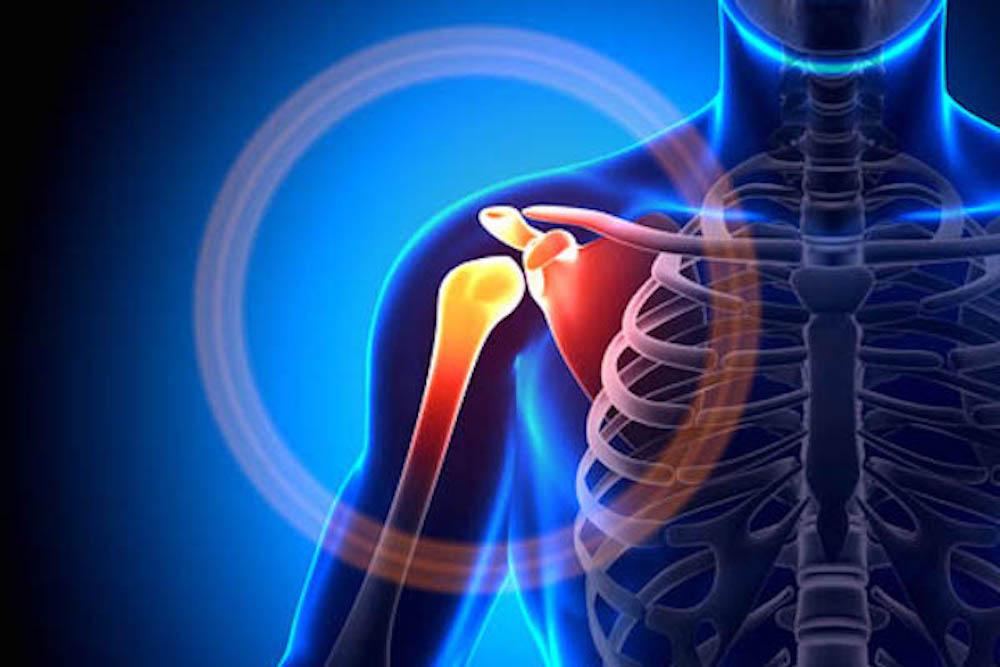 التهاب الأوتار ما بين العظام