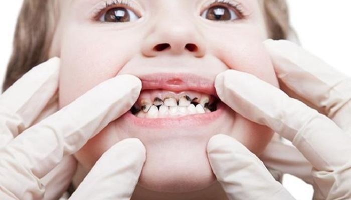 يؤدي إلى تسوس الاسنان