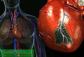تأثير التدخين على أنظمة القلب والأوعية الدموية