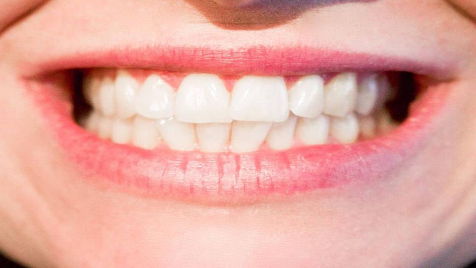 المضادات الحيوية ولون الأسنان